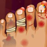 Monster Foot Doctor